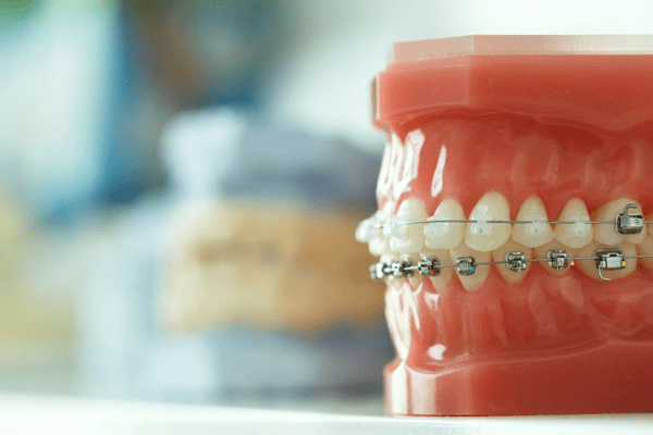 Dental Directory acquires Torque Orthodontics